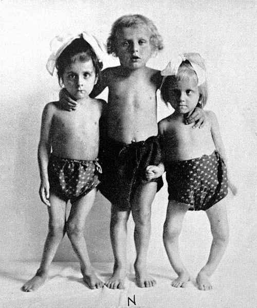 Children with Rickets