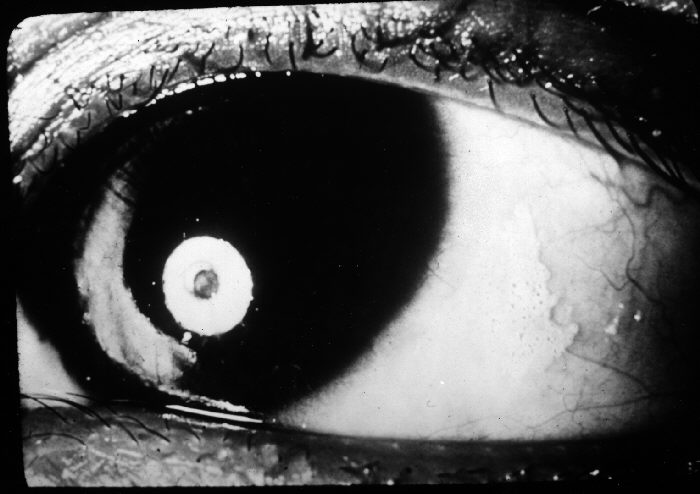 Bitot spot on eye
