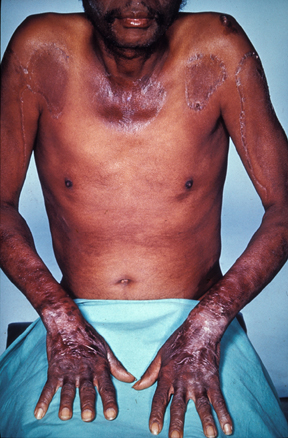 Pellagra effects of Thiamin deficiency