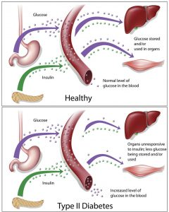 Healthy Individuals and Type 2 Diabetes