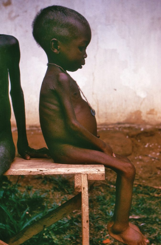 Malnourished child sufferring from protein deficiency.