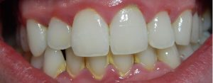 Close up of teeth showing signs of gingivitis