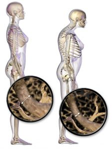 Illustration depicting normal standing posture and osteoporosis