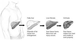 Fatty liver: deposits of fat cause liver enlargement; Liver fibrosis: scar tissue forms. More liver cell injury occurs; Cirrhosis: scar tissue makes liver hard and unable to work properly.