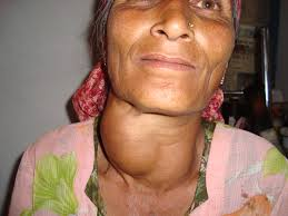 Woman with large goiter on neck
