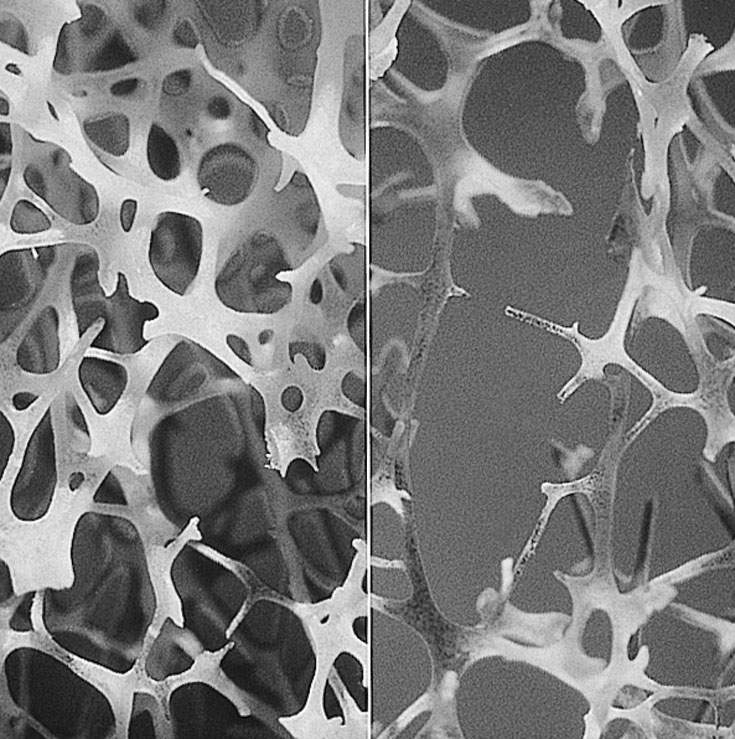 A micrograph shows normal (left) and degraded (right) trabecular (spongy) bone.