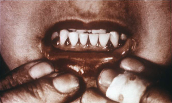 Bleeding gums in a patient's mouth