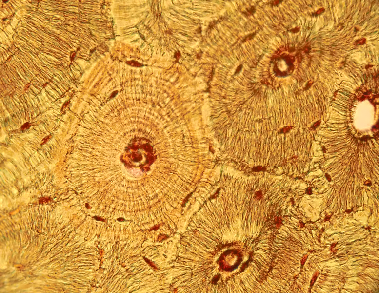 micrograph of compact bone with osteons