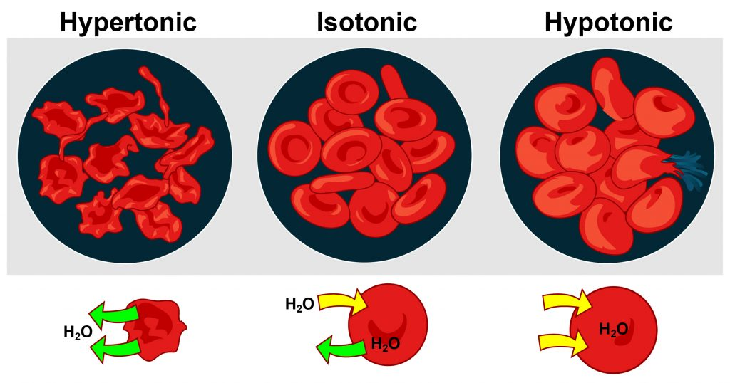Three forms of osmoregulation with a detailed view of the redblood cells shown: hypertonic (too much water leaving redblood cell), isotonic (balanced), hypotonic (too much water entering redblood cell).